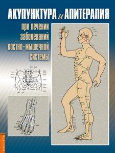 Акупунктура и апитерапия при лечении заболеваний костно-мышечной системы